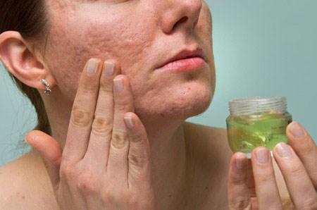 Kem trị sẹo lõm trên mặt sử dụng như thế nào hiệu quả?9----