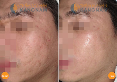 Cách trị sẹo lõm hiệu quả nhất tại Bệnh viện thẩm mỹ Kangnam800000