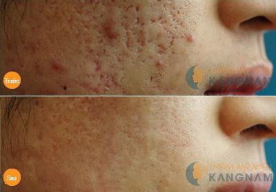 Cấy da siêu vi điểm - Hết sạch sẹo lõm - Da phẳng mịn: Off 30% 4
