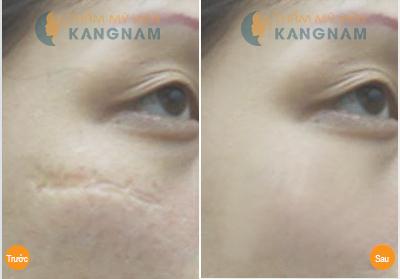 Cấy da siêu vi điểm - Hết sạch sẹo lõm - Da phẳng mịn: Off 30% 5