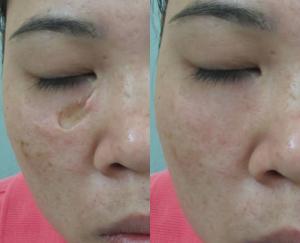 San phẳng sẹo rỗ tới 90% chỉ sau 1-2 lần trị liệu465677