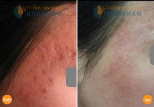 Bị sẹo thâm đỏ trên mặt chữa trị như thế nào?890-74