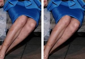 Kem trị sẹo thâm ở chân và những nguy cơ tiềm ẩn 3