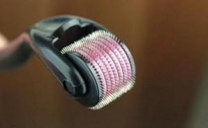 Đã tìm ra cách trị sẹo mụn lâu năm hiệu quả tới 90%
