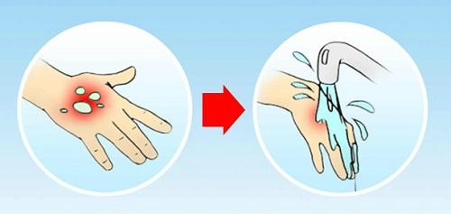 Làm nguội nhanh vết bỏng dầu ăn dưới nước lạnh để giảm đau