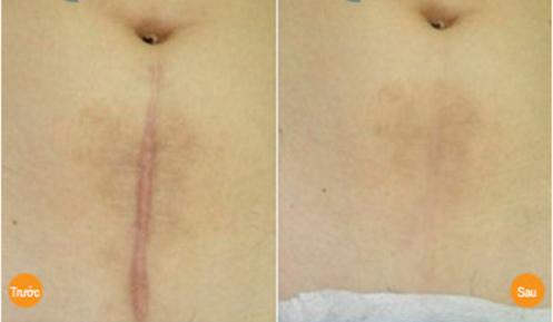 Laser CO2 trị sẹo lồi hiệu quả rõ rệt