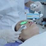 Trị sẹo lồi bằng laser CO2 có đau không? Chia sẻ từ chuyên gia