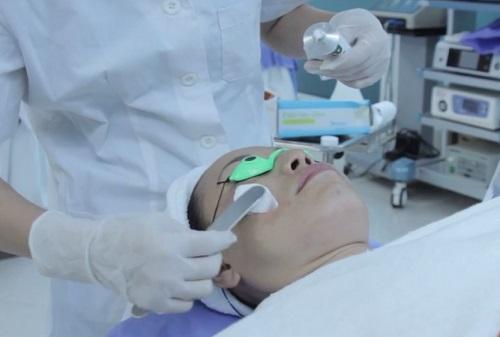 trị sẹo bằng laser CO2 có đau không