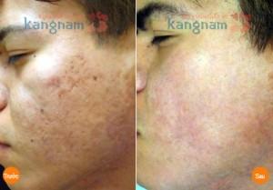 Trị sẹo thâm sau tai nạn tại Kangnam hiệu quả