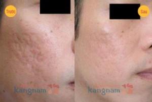 Trị sẹo lõm hiệu quả tại Kangnam với chi phí hợp lý nhất