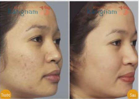 Hình ảnh sau 3 tháng điều trị sẹo thâm của chị Loan