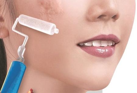 cách chữa sẹo lồi hiệu quả nhất111