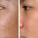 Cách trị sẹo rỗ trên mặt tại nhà bằng phương pháp tự nhiên