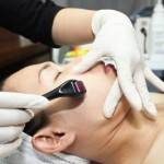 Lăn kim trị sẹo rỗ có hiệu quả không?