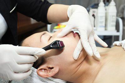 Lăn kim trị sẹo rỗ có hiệu quả không?45