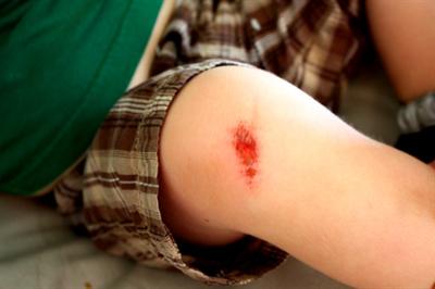 Cẩn trọng khi xử lý vết thương bị trầy xước