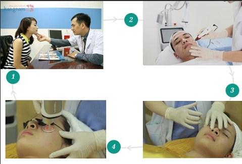 Trị sẹo lõm cấy da siêu vi điểm có an toàn không?22