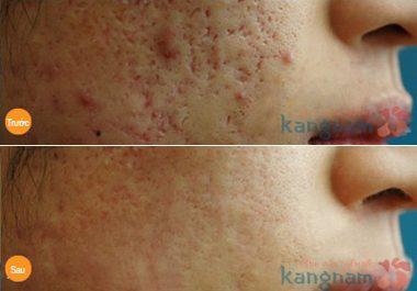 Trị sẹo lõm cấy da siêu vi điểm có an toàn không?8