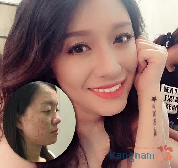 tri-seo-lom4