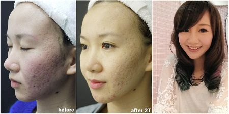 kết quả trị sẹo rỗ tại kangnam