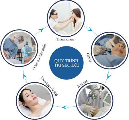 Phác đồ điều trị sẹo lồi tuân thủ theo quy trình đột phá mới nhất hiện nay