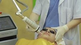 Điều trị sẹo lồi bằng Laser CO2 Fractional có hiệu quả triệt để không