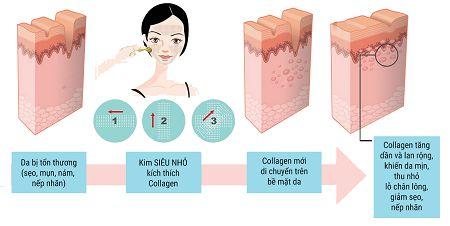 Cơ chế tự chữa lành vết thương sau điều trị sẹo bằng kim lăn