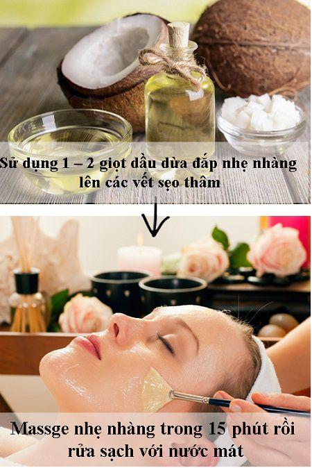 """Bí kíp """"độc"""" trị sẹo lõm sau mụn bằng dầu dừa"""