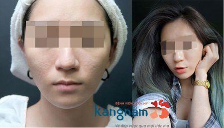 Chị H.N sau điều trị sẹo lõm sau mụn bằng cấy da siêu vi điểm