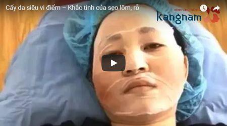 »» [CLICK XEM] Cận cảnh quá trình điều trị sẹo lõm sau mụn bằng công nghệ cấy da siêu vi điểm