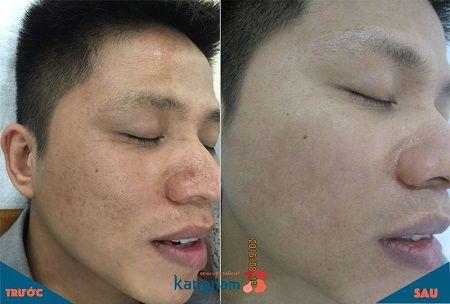 Sẹo mụn được loại bỏ hoàn toàn, lấy lại gương mặt trẻ trung