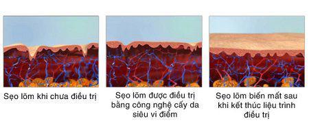 Hình ảnh mô phỏng quá trình tái tạo da sau khi điều trị