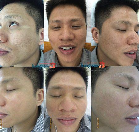 Kết quả chứng minh thực tế cho hàng ngàn khách hàng điều trị sẹo lõm thành công