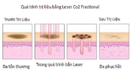 Quy trình điều trị sẹo lồi không phẫu thuật bằng Laser