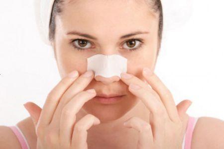 Cách trị sẹo lồi ở mũi hiệu quả nhanh nhất11