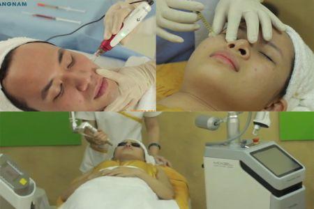 Quy trình trị sẹo lõm tại Kangnam