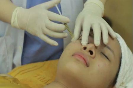 phương pháp trị sẹo lõm hiệu quả nhất hiện nay