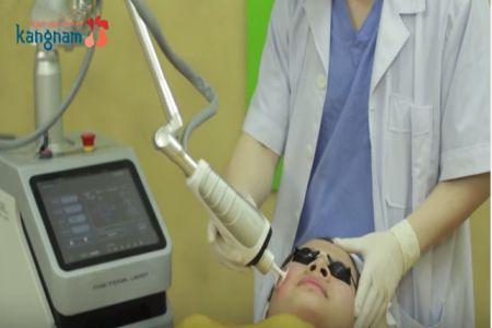 phương pháp trị sẹo lõm đơn giản hiệu quả