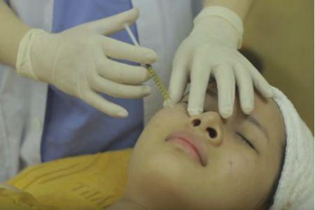 Cách trị sẹo lõm hiệu quả nhất