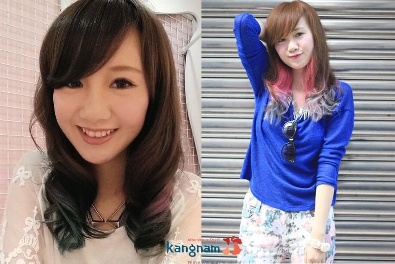 Làn da của tôi giờ đã thay đổi rất nhiều sau khi điều trị sẹo tại Kangnam