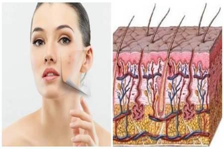 Trị sẹo lõm lâu năm do mụn như thế nào hiệu quả