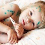 Cách chữa bệnh thủy đậu nhanh nhất – không lo sẹo và biến chứng