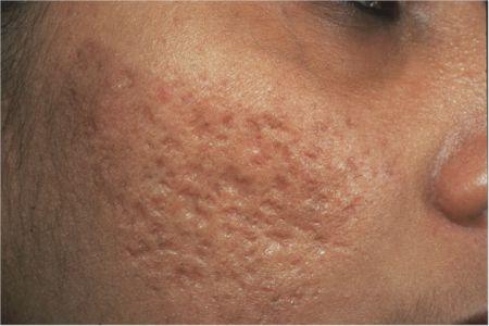 Khám phá cách trị sẹo lõm do thủy đậu, tái tạo da từ bên trong1